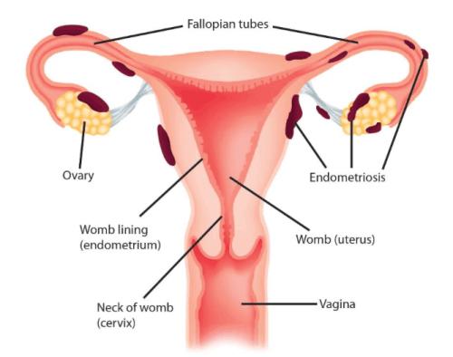 intro to endometriosis recurrent pregnancy loss. Black Bedroom Furniture Sets. Home Design Ideas